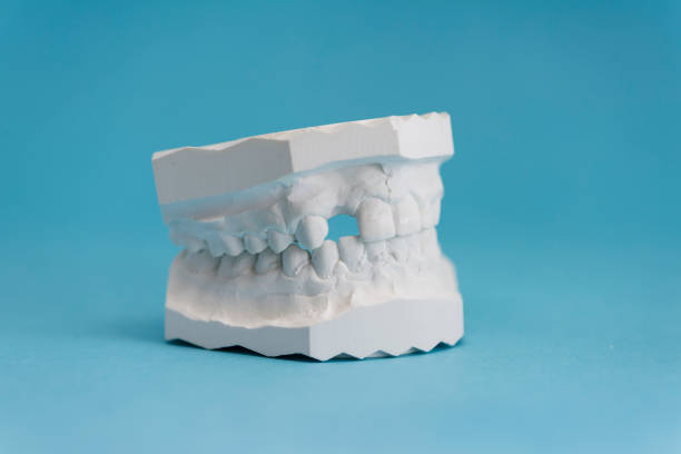 close-up of plaster cast / dental impression of a human jaw with one tooth missing in front of blue background