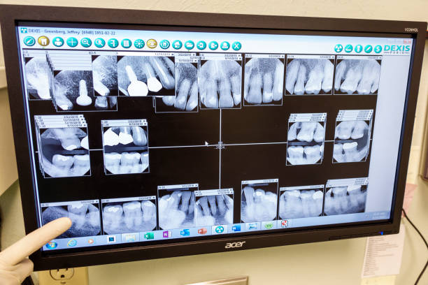 Miami Beach, periodontist office examination room, teeth x-rays. (Photo by: Jeffrey Greenberg/Education Images/Universal Images Group via Getty Images)